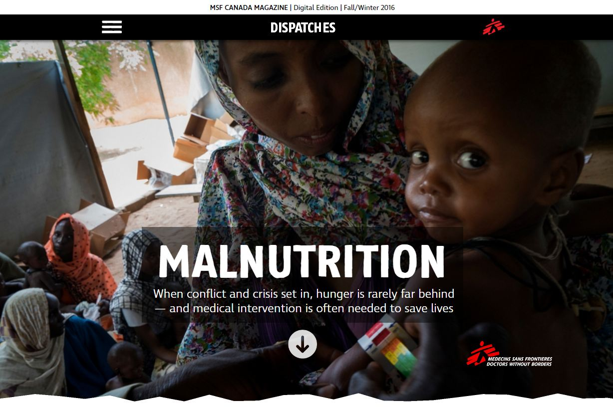 MALNUTRITION - When conflict and crisis set in, hunger is rarely far behind - and medical intervention is often needed to save lives