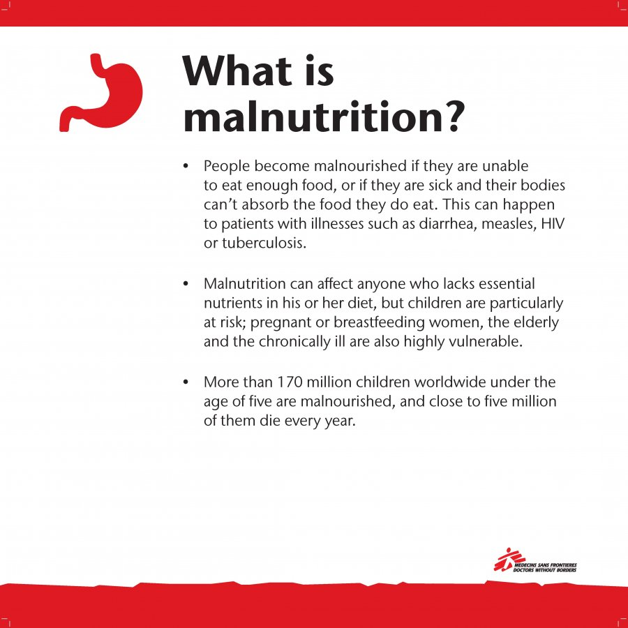 The Following Material From Exhibit Relates To MSFs Work In Response Malnutrition An Ongoing Health Crisis That Kills Millions Of Children Around